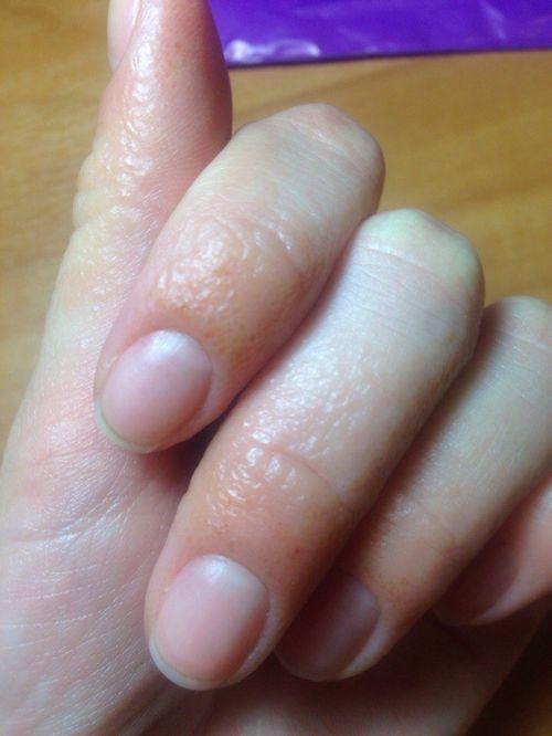 что делать если ногти на руках сегутся
