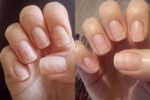 Способы восстановления ногтей после гель лака